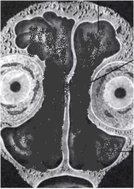 Синуситы