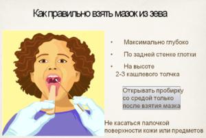 «Мазок из зева» - микрофлора
