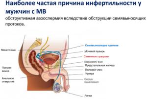 Репродуктивное и  андрологическое здоровье  молодых людей с  муковисцидозом