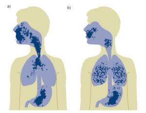 Особенности ингаляционной терапии у маленьких детей с муковисцидозом. Исследования по физико-химической совместимости ингаляционных смесей.(Германия).